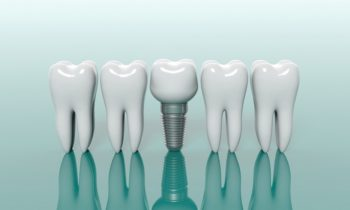 5 Advice Before You Get Dental Implants