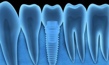 4 Important Considerations When Deciding on Dental Implants